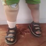 پروتز پای امیر مهدی آماده شد/ پیگیری درمان کودک سه ساله