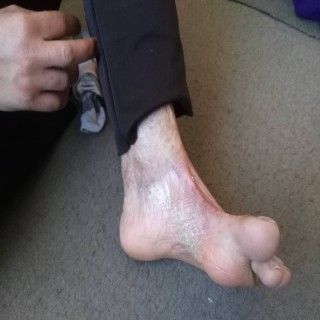 قوزک پای ماریه یاری رفتن نداره