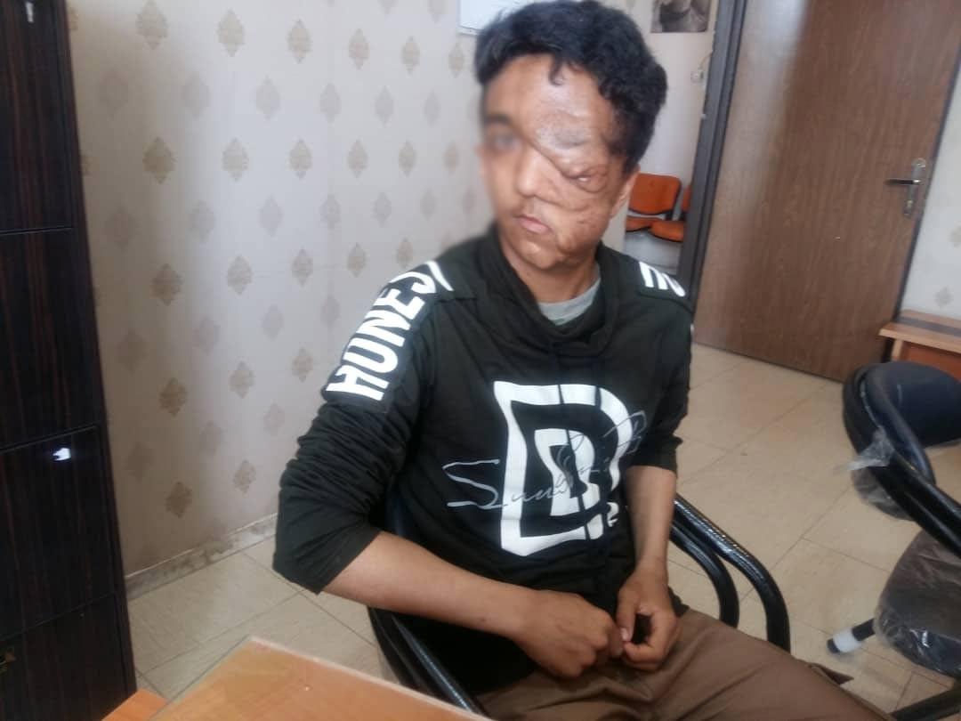 نوجوان ۱۶ ساله در آستانه نابینایی