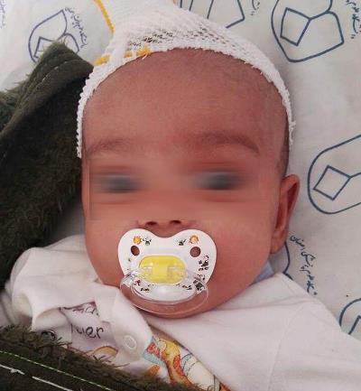 پدر شیشه ای نوزاد ۴ ماهه را ضربه مغزی کرد/ جدال