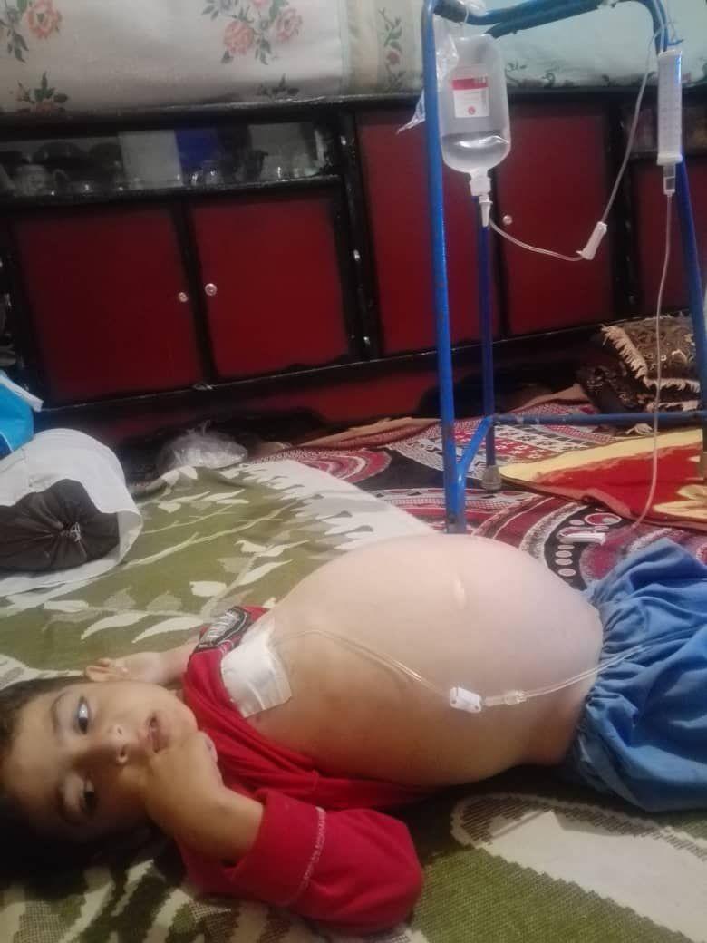 آیا رنجِ ۴ ساله رضا تمام میشود؟/ درخواست یاری برای درمان پسربچه کرمانی
